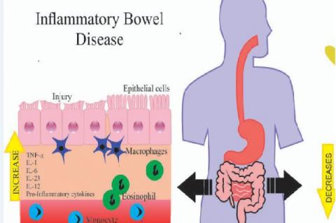 Inhibition of epithelial cells in IBD due to the increase of inflammatory cells and cytokines, such as TNF-α (Tumor Necrosis Factor-α), IL-1 (Interleukin-1), IL-6, IL-12 and IL-23 and the anti-inflammatory effect of resveratrol